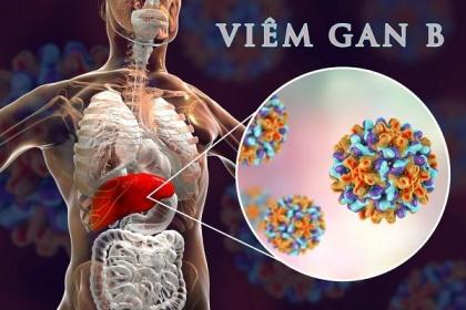 Vì sao nhiễm siêu vi viêm gan B có nguy cơ dẫn tới Xơ gan và ung thư gan?