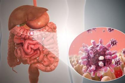 Viêm dạ dày ruột ở người lớn
