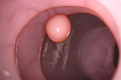 Polyp thực quản: Khi nào cần phẫu thuật?