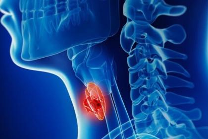 Các giai đoạn và sự tiến triển của ung thư hạ họng