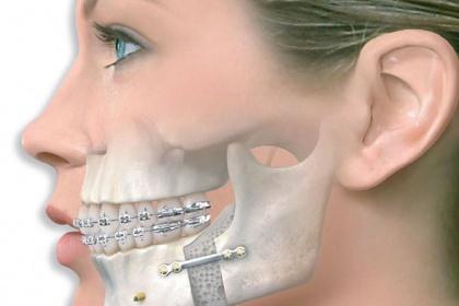 Quy trình chụp cắt lớp vi tính hàm mặt có tiêm thuốc đối quang theo mặt phẳng axial v