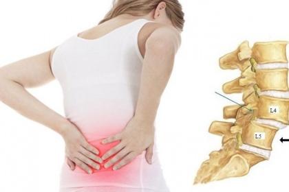 Phẫu thuật điều trị trượt đốt sống thắt lưng