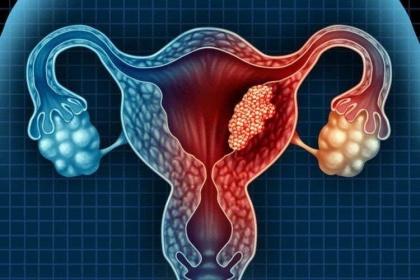 Các yếu tố nguy cơ gây ung thư buồng trứng