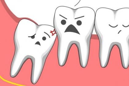 Khi nào cần chụp x quang răng khôn?