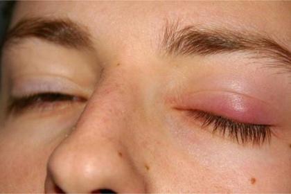 Nguyên nhân gây chắp, lẹo mắt