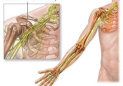 Gây tê đám rối thần kinh cánh tay phẫu thuật nội soi thoái hóa khớp cùng đòn
