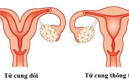Gây mê nội khí quản phẫu thuật dị dạng tử cung