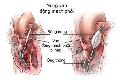 Chỉ định nong hẹp nhánh động mạch phổi