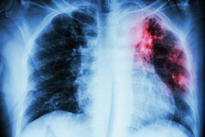 Chẩn đoán hình ảnh lao phổi