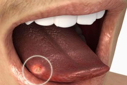 Các yếu tố nguy cơ của ung thư lưỡi