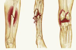 Gãy xương bệnh lý: Những điều cần biết