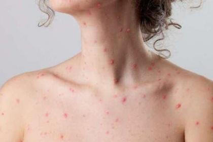 Vì sao tôi có thể mắc bệnh thủy đậu? Các triệu chứng của bệnh là gì?