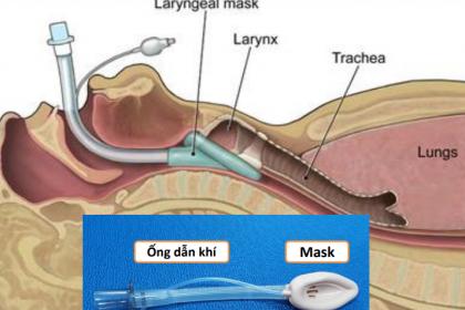 Gây mê mask thanh quản phẫu thuật nội soi xẻ sa lồi lỗ niệu quản