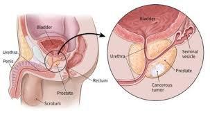 Các yếu tố nguy cơ của ung thư tuyến tiền liệt