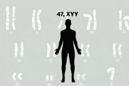 Tìm hiểu Hội chứng 47,XYY