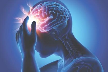 Xạ phẫu SRS trong điều trị sang thương hệ thần kinh trung ương
