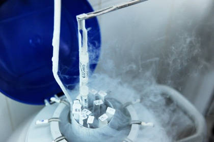Các phướng pháp trữ lạnh tinh trùng
