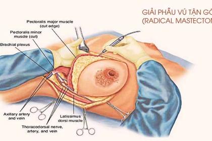 Tìm hiểu về phẫu thuật cắt bỏ vú điều trị nang tuyến vú