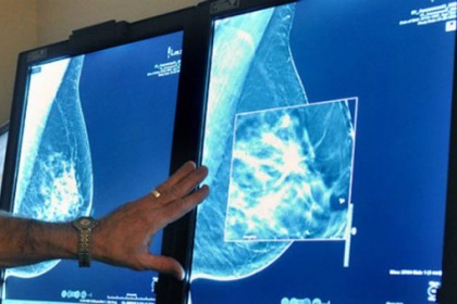 Chụp X quang tuyến vú biện pháp tầm soát ung thư vú hiệu quả