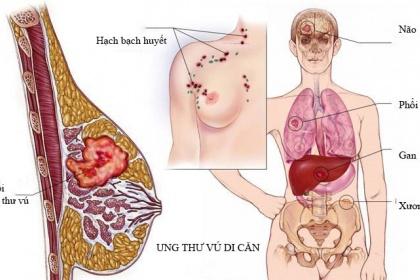 Ung thư vú có thể di căn đến những vị trí nào?