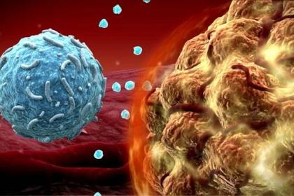 Liệu pháp miễn dịch với Keytruda ở bệnh nhân ung thư vùng đầu cổ