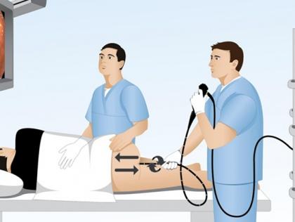 Gói tầm soát ung thư đại tràng có gây mê (HV41)