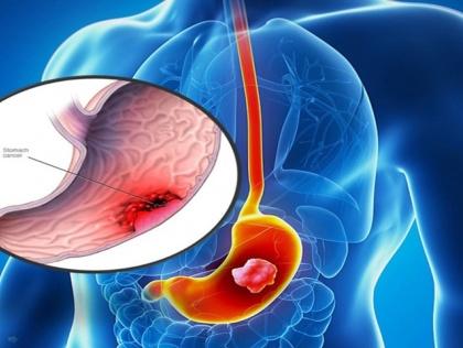 Tầm soát ung thư dạ dày gây mê