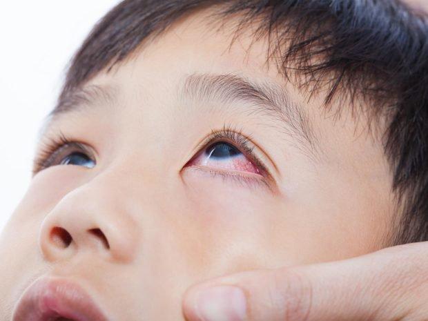 Viêm giác mạc: Nguyên nhân, triệu chứng, cách phòng tránh - ảnh 2