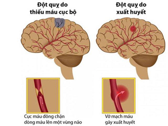 Phương pháp phòng tránh tai biến mạch máu não - ảnh 1