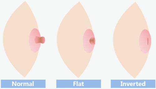 Núm vú bị tụt: nguyên nhân và Cách điều trị - ảnh 1