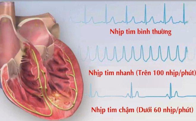 Nhịp tim bao nhiêu là bình thường? - ảnh 2