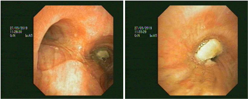 Lấy xương mắc trong phế quản bằng kỹ thuật nội soi phế quản ống mềm g - ảnh 2
