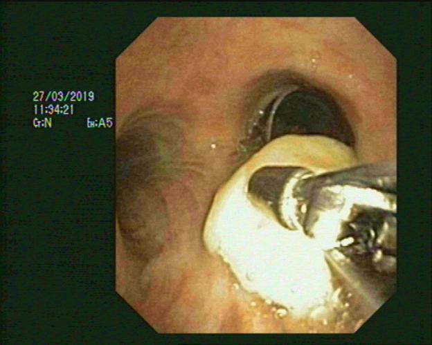 Lấy xương mắc trong phế quản bằng kỹ thuật nội soi phế quản ống mềm g - ảnh 3