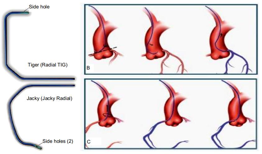 Chụp mạch vành - Trong Chẩn đoán và điều trị bệnh mạch vành - ảnh 1