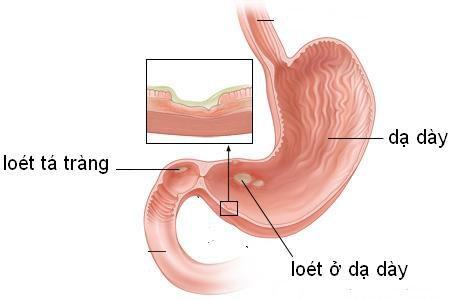 Đau dạ dày ăn gì để nhanh khỏi bệnh? - ảnh 1