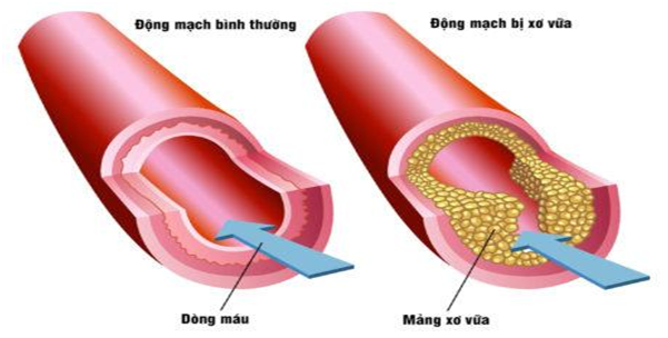 Nhồi máu cơ tim cấp là gì? Nguyên nhân và Triệu chứng nhận biết - ảnh 1