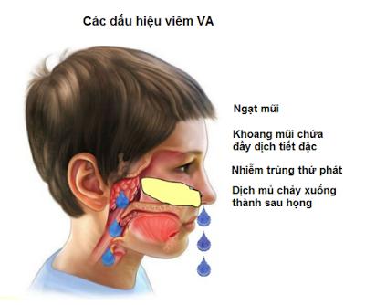 Viêm VA cấp tính và viêm VA mạn tính có biểu hiện như thế nào? - ảnh 1