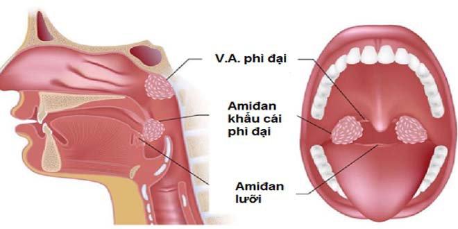 Khi nào nên nạo VA và cắt amidan cho trẻ? - ảnh 1