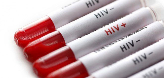 3 con đường lây truyền của virus HIV - ảnh 2