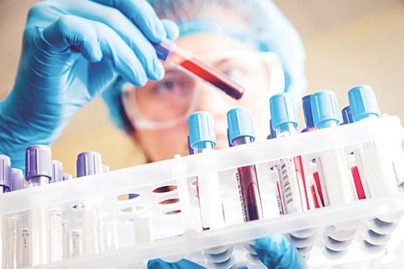 Ý nghĩa của xét nghiệm máu và nước tiểu trong gói khám sức khỏe tổng quát - ảnh 2