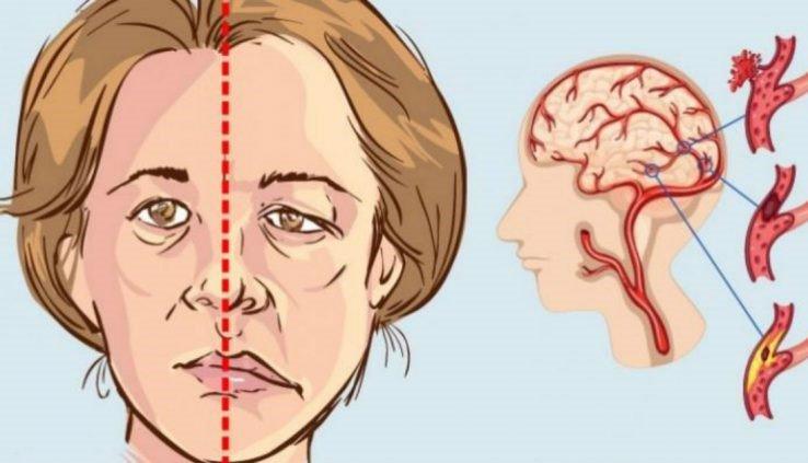 10 dấu hiệu tai biến ai cũng cần biết để xử lý kịp thời - ảnh 1