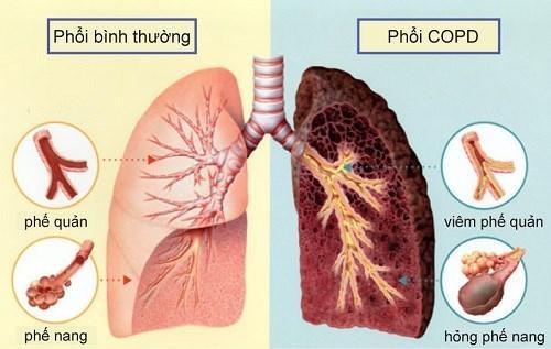 Những xét nghiệm giúp phát hiện bệnh phổi tắc nghẽn mãn tính - ảnh 2