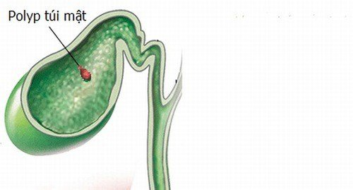 Polyp túi mật là bệnh gì, Triệu chứng và có cần phải điều trị không? - ảnh 1