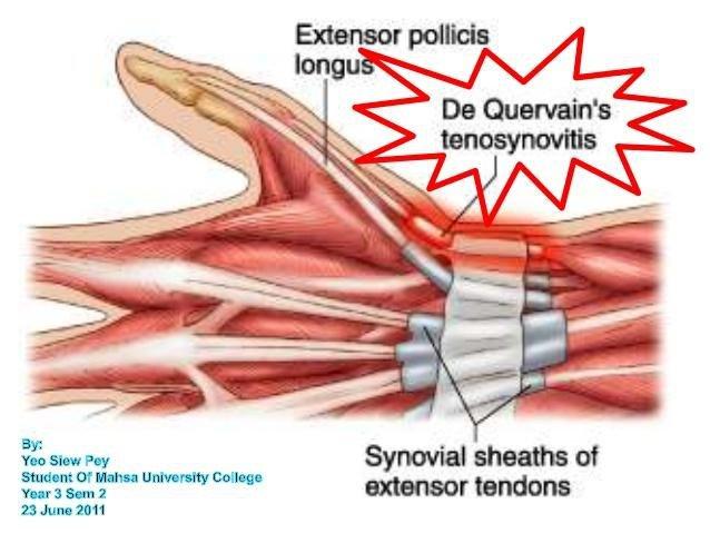 Triệu chứng của viêm bao gân cổ tay - ảnh 1