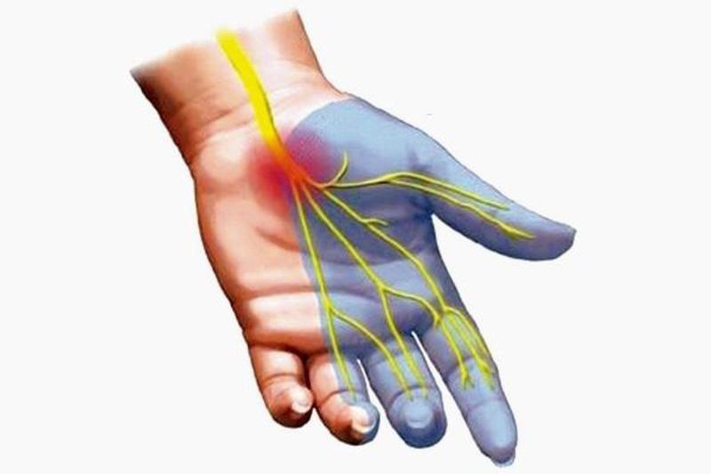 Triệu chứng của viêm bao gân cổ tay - ảnh 2