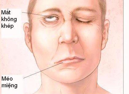 Liệt dây thần kinh số VII (liệt mặt) có nguy hiểm không? - ảnh 1