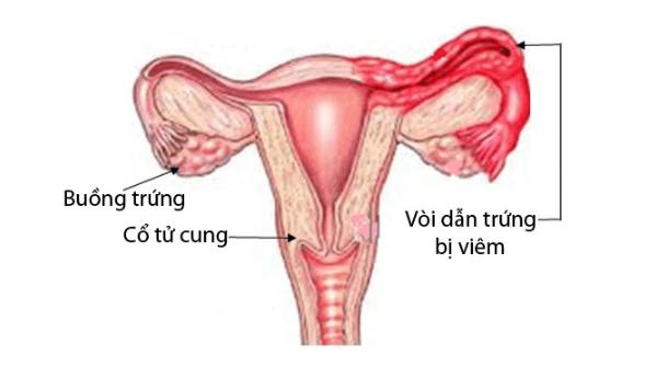 Viêm ống dẫn trứng: Nguyên nhân, triệu chứng, biến chứng và cách điều trị - ảnh 1