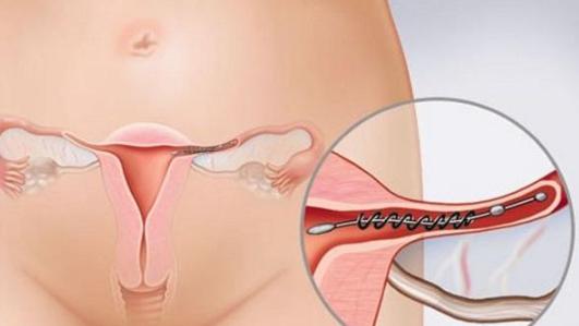 Viêm ống dẫn trứng: Nguyên nhân, triệu chứng, biến chứng và cách điều trị - ảnh 2