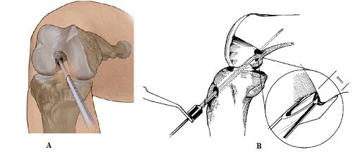 Có những kỹ thuật nào để tái tạo dây chằng chéo sau chấn thương gối - ảnh 3