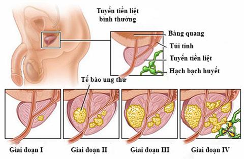 Các triệu chứng ung thư tuyến tiền liệt giai đoạn cuối - ảnh 3